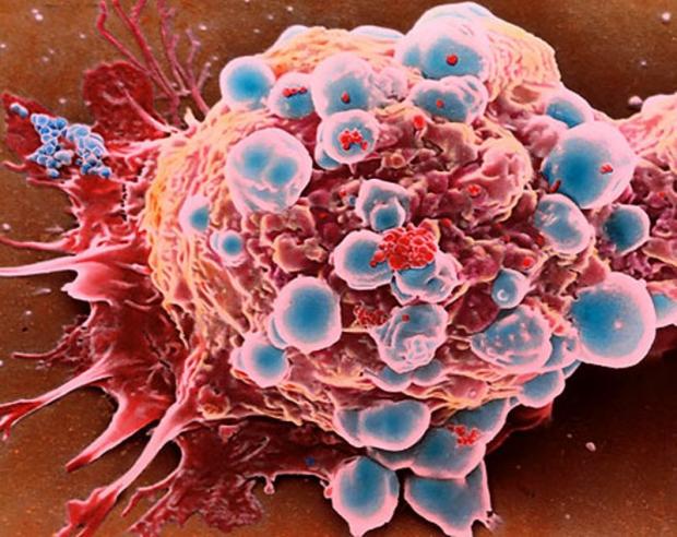 Kanseri Bağışıklık Sistemi Vuracak!